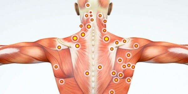 zespół napięcia mięśniowego