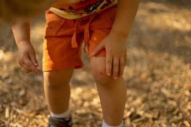 ból nóg u dziecka
