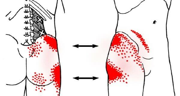 miejsca, na które może promieniować ból biodra