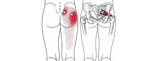 ból w mięśniu gruszkowatym